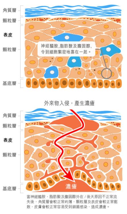 為肌膚說明製作圖片